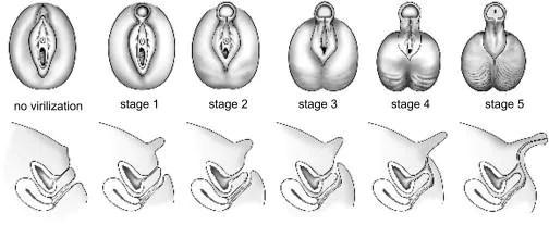 http://emedicine.medscape.com/article/924291-clinical#b4