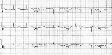 Long QT Syndrome: Practice Essentials, Background