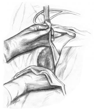 Forceps Delivery Procedures Technique: Approach