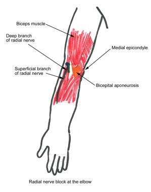 radial nerve diagram shower stall block overview indications contraindications at the elbow