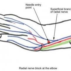 Radial Nerve Diagram 2003 Ford Windstar Vacuum Hose Block Overview Indications Contraindications At The Wrist Level
