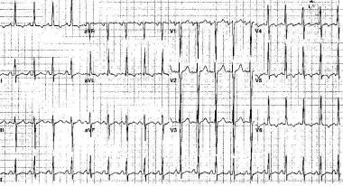 Case study 6 hypertension cardiovascular disease