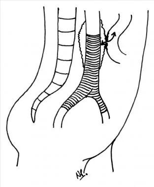 Intestinal Fistula Surgery Clinical Presentation: History
