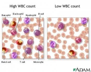 Leukocytosis: Background, Pathophysiology, Epidemiology