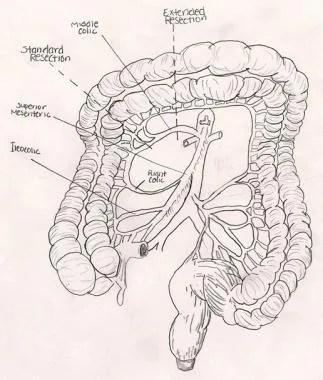 robotic transverse colectomy cpt code