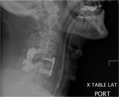 Postoperatif lateral radyografi anterior