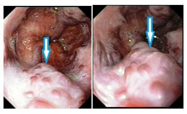 Image result for Esophageal varices