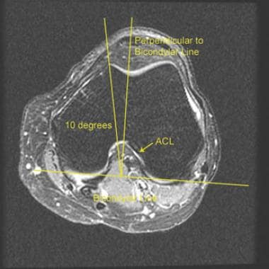 MRI for Anterior Cruciate Ligament Injury Overview
