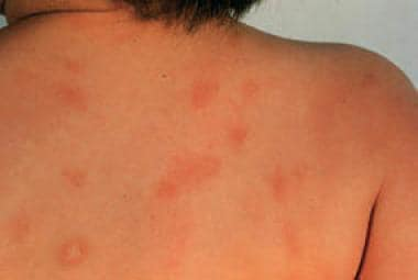 Urticaria pigmentosa lesions on the back of a chil