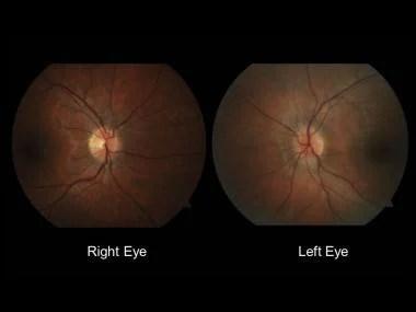 Neuro-Ophthalmologic Manifestations of Multiple Sclerosis (MS ...