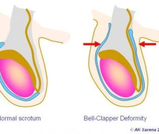 Normal Testis Left Bell Clapper Deformity Righ