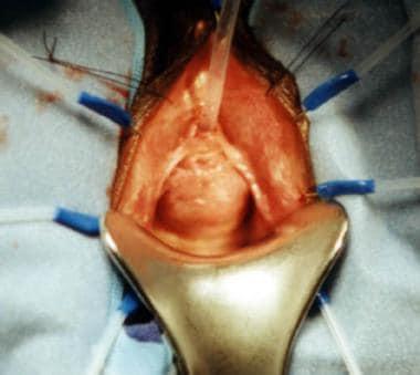 Urethral Diverticula: Practice Essentials Relevant ...