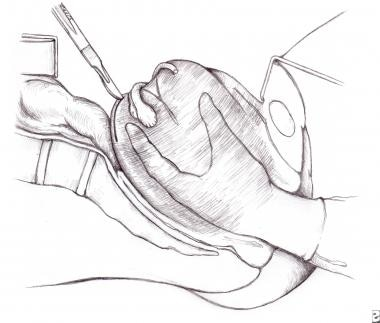 Malposition of the Uterus: Overview, Uterine Retroversion
