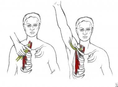 Physical Medicine and Rehabilitation for Thoracic Outlet