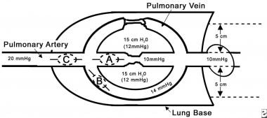 Pulmonary Artery Catheterization Technique: Equipment