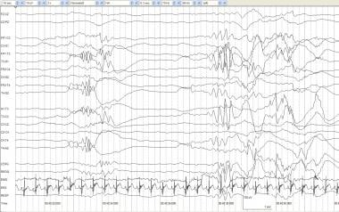 Visual Analysis of Neonatal EEG: Overview, Technique