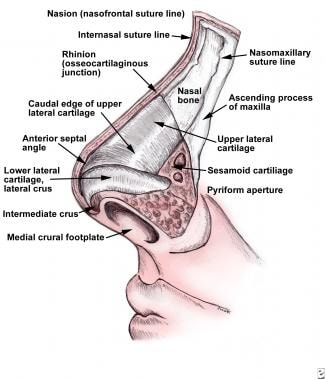 bones diagram human face deep well pump wiring 220 nasal and septal fractures: background, epidemiology, etiology