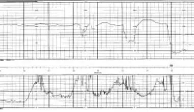 Abruptio Placentae Workup: Laboratory Studies