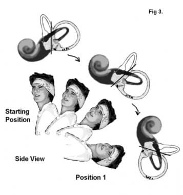 Benign Paroxysmal Positional Vertigo Treatment