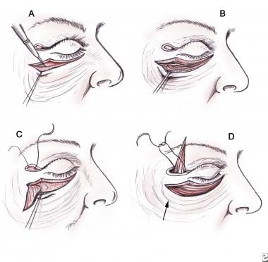 Lower Lid Subciliary Blepharoplasty Treatment & Management