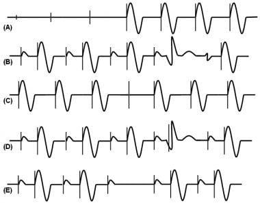 Transvenous Cardiac Pacing Technique: Transvenous Pacing