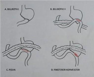 Partial Gastrectomy Periprocedural Care: Patient Education