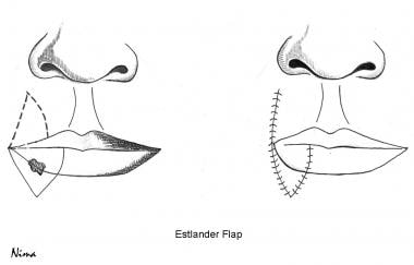 Lip Reconstruction Procedures: Background, History of the