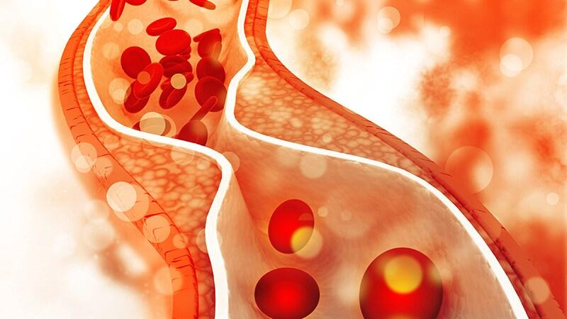 Perioperative Anticoagulation Management Definition of