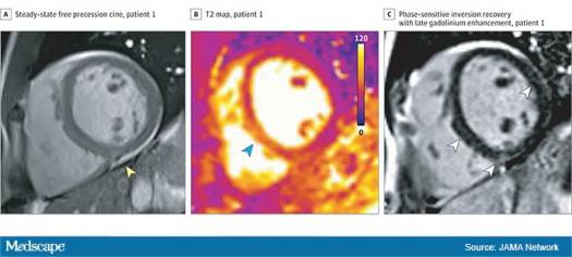 Another Study Suggests Lasting COVID-19 Impact on Heart 2