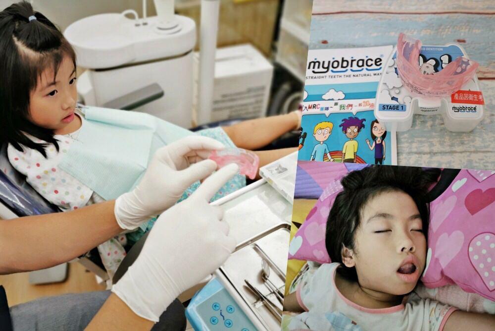 兒童牙齒矯正》MRC功能性齒顎矯正。8Y米姐開啟牙齒矯正之路~