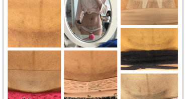 第二胎剖腹產傷口記錄(內含照片)~1/15更新