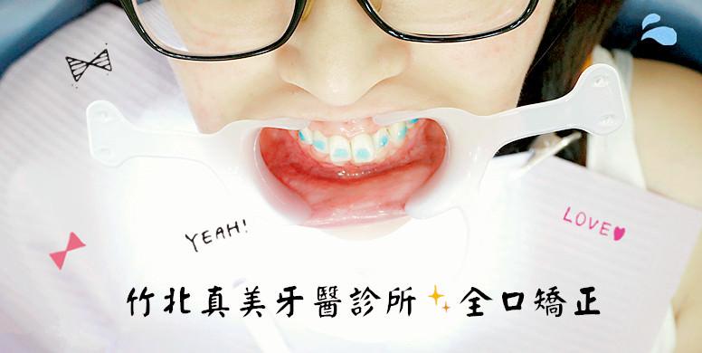 新竹竹北牙醫 | 真美牙醫診所 舒眠植牙中心 兔兔暴牙 磨牙 全口矯正 臼齒墊高