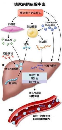 如何及早發現糖尿病酮癥酸中毒