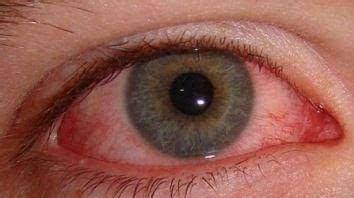 【何主任提醒】眼癢小心過敏性結膜炎
