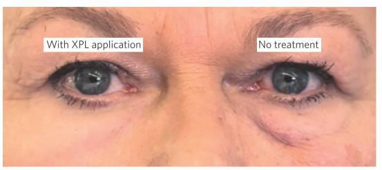 在家秒去眼袋—有視頻有真相!手術去眼袋落后了嗎