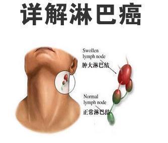 淋巴瘤的早期表現是什么?_搜狐健康_搜狐網