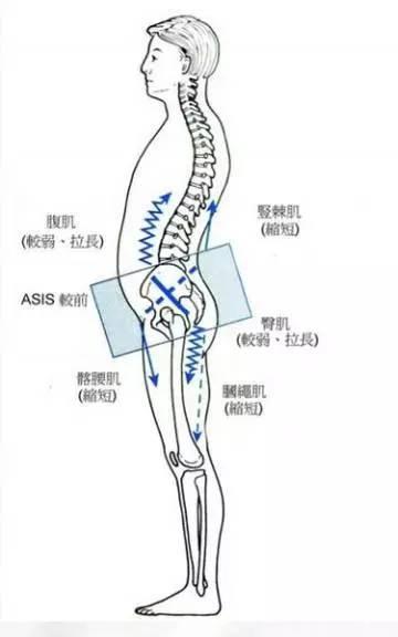 骨盆傾斜對跑步的影響與危害