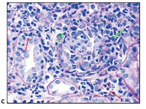 腎內病理圖解:小管間質性腎炎