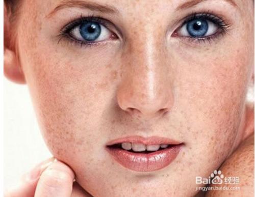 如何淡化臉上的色斑-怎么樣才能淡化色斑-臉上的紅痘印怎樣淡化-吃什么能淡化臉上的斑-如何淡化色斑黑色素 ...