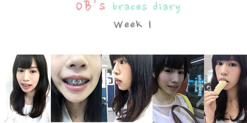 牙套 ♪ |全方位矯正|曾明貴醫師 第一週牙套日記&諮詢&食物