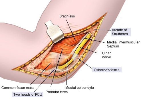 ulnar nerve diagram 6th grade animal cell labeled with functions neuropathies orthopedics medbullets step 2 3