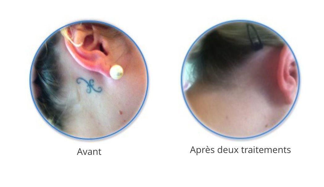 Detatouage Sans Laser, Sans Douleur  Céline H Maquillage