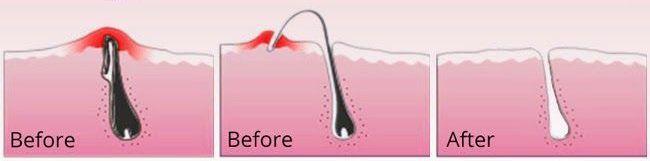 Comment éviter les poils incarnés ?