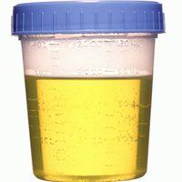 urine-pot.jpg