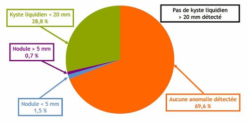 graphiqueIRSN1