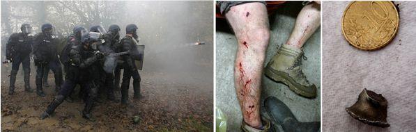 https://i0.wp.com/img.over-blog.com/600x190/0/48/62/64/Annee-2014/presse-flashball/Master-blessures-desencerclement.jpg