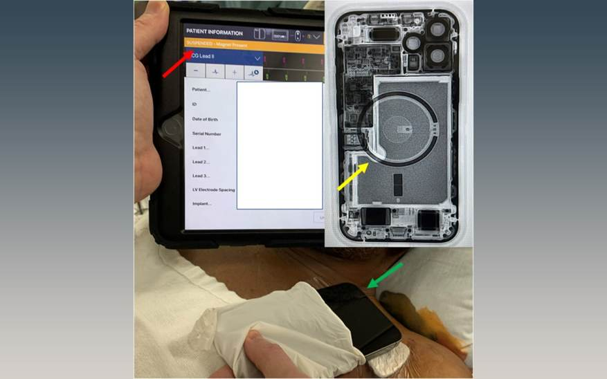 iphone pacemaker