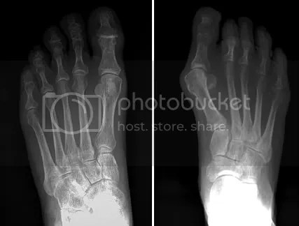 xray of normal foot (left) and a foot with a bunion (right) hallux valgus