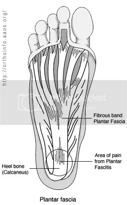 picture of Plantar Fascia Anatomy heel pain Arun Shanbhag
