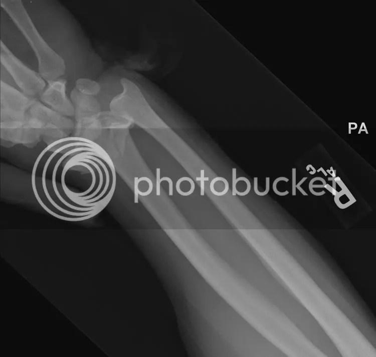 Trauma Rounds Intra-articular distal radius Fractures, Brandon Earp